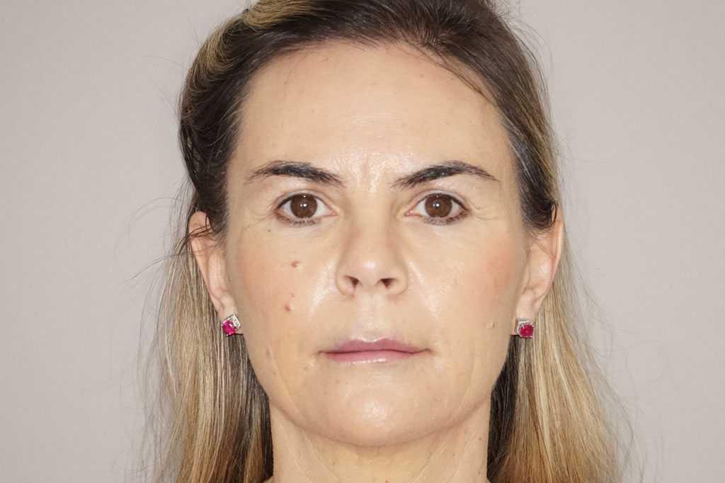 Gesichtsbehandlung mit Eigenfett Fetttransfer vom Bauch after frontal