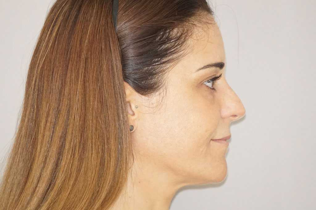 Injerto de grasa facial Pérdida de volumen facial after profile