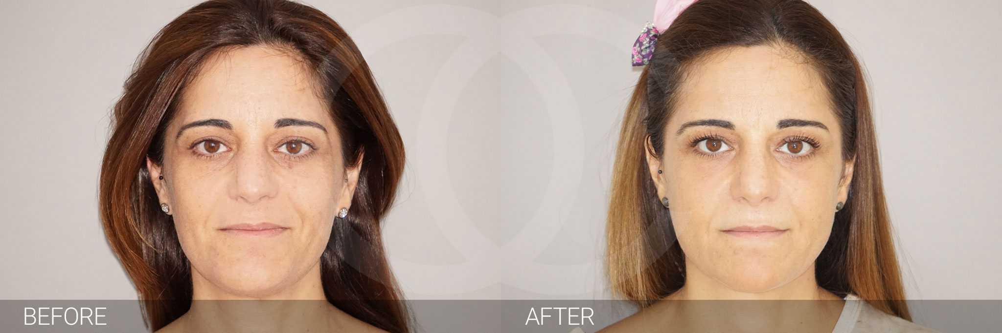 Gesichtsbehandlung mit Eigenfett Gesichtsvolumenverlust ante/post-op I