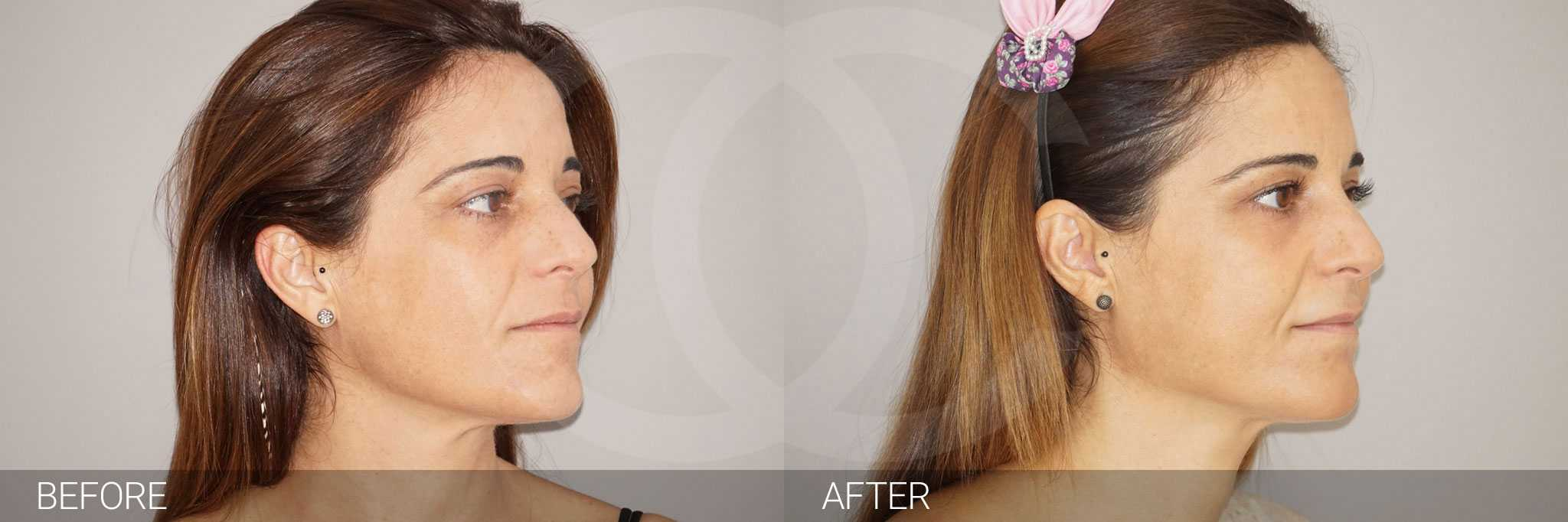 Gesichtsbehandlung mit Eigenfett Gesichtsvolumenverlust ante/post-op II