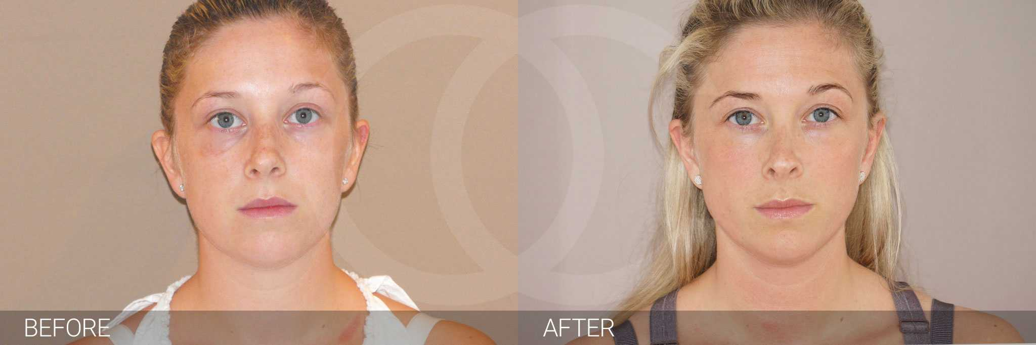 Nose Correction NOSE JOB ante/post-op I