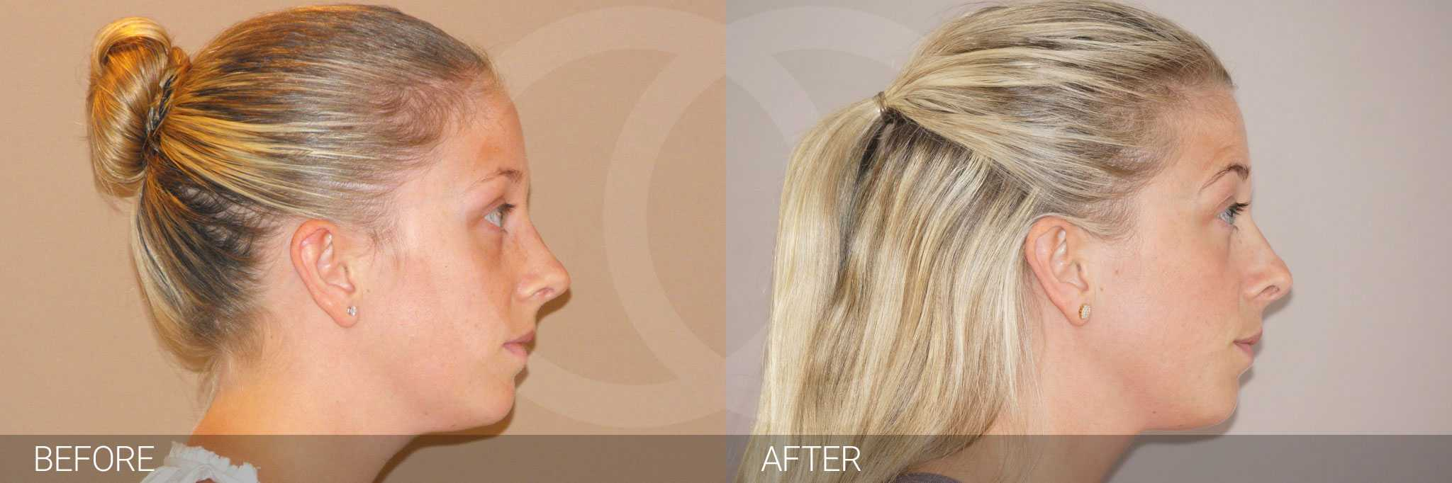 Nose Correction NOSE JOB ante/post-op III