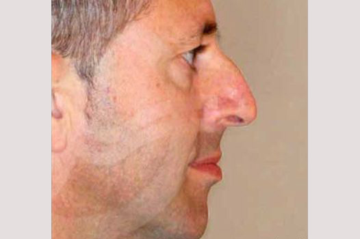 Nose Correction CLOSED RHINOPLASTY before side