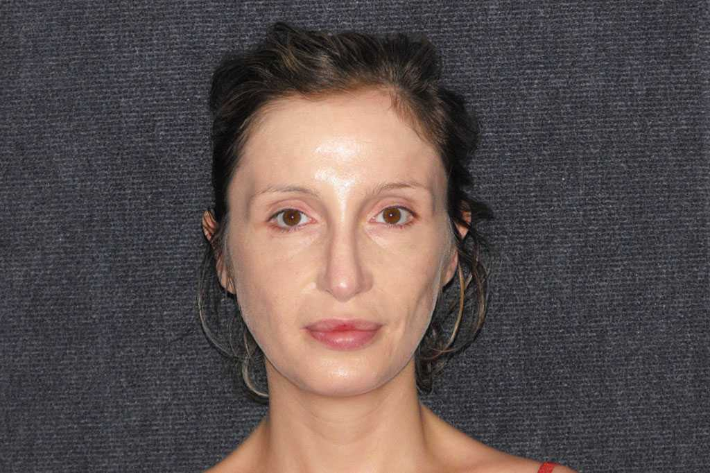 Nose Correction CLOSED TIP RHINOPLASTY ante-op profil