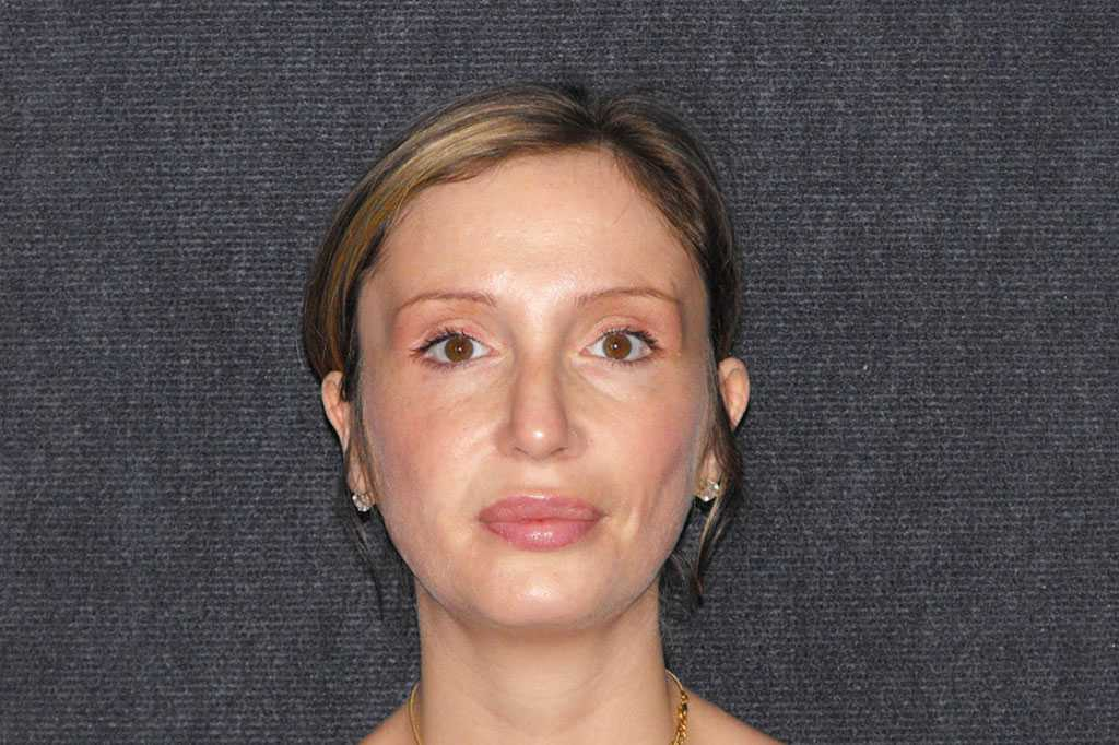 Nose Correction CLOSED TIP RHINOPLASTY post-op profil
