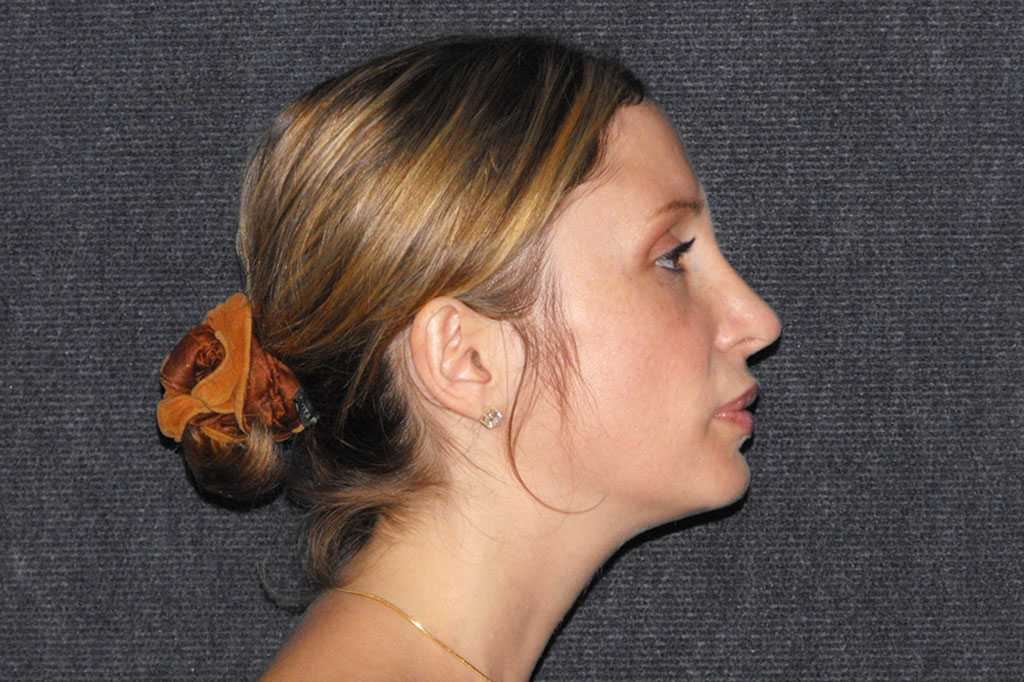 Nasenkorrektur RHINOPLASTIK after profile