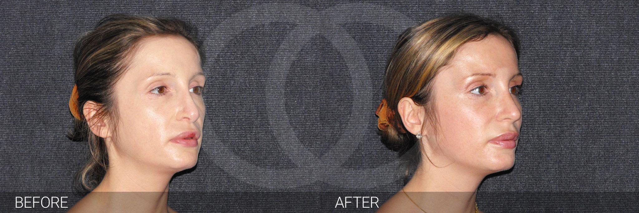 Chirurgie du nez 04 ante/post-op II