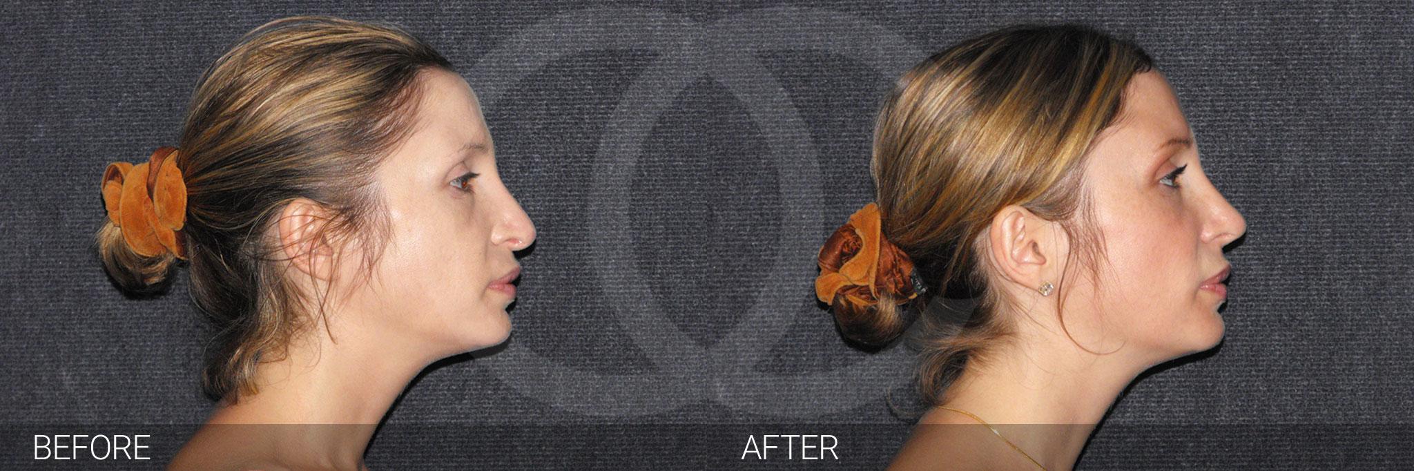 Chirurgie du nez 04 ante/post-op III