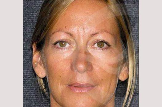 Cirugía de la nariz RINOPLASTIA CERRADA before forntal