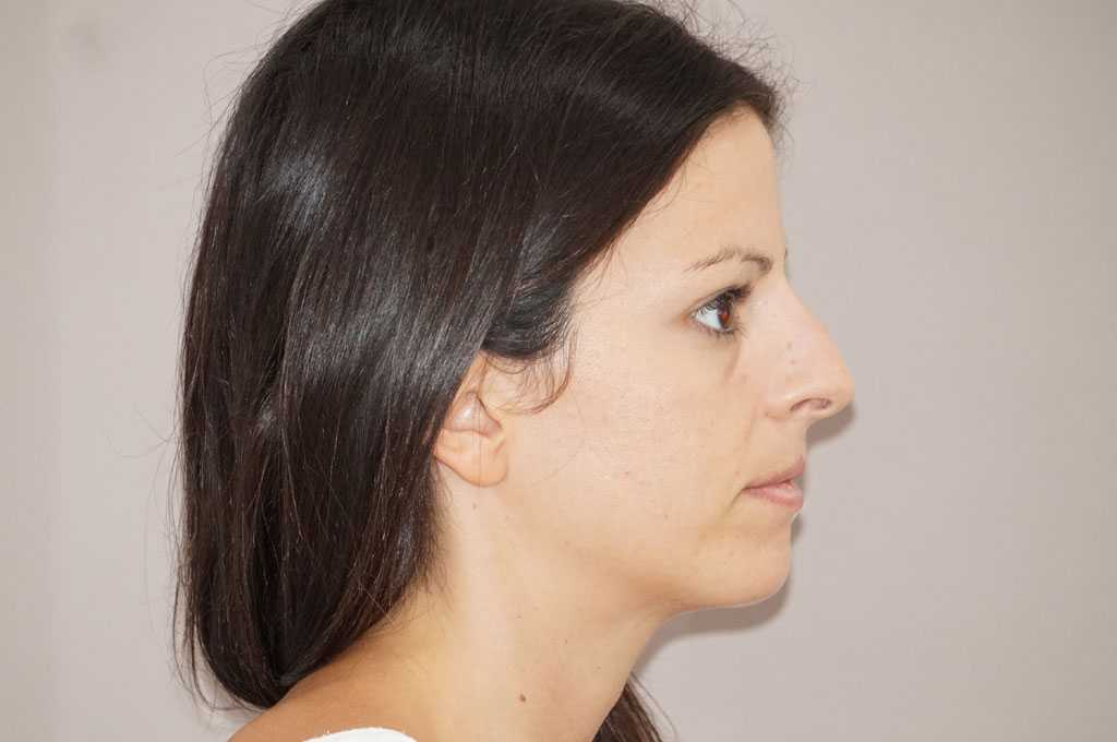 Nose Correction TIP DELIVERY TECHNIQUE before side
