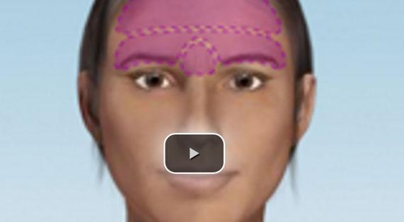 Animation Forehead Lift Ocean Clinic Marbella Spain