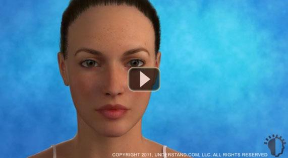 Gesichtsstraffung Gesamtes Gesicht 3D Animation. Ocean Clinic Marbella