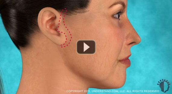 Lifting Facial Animación en 3D. Parte Media de la cara. Marbella Ocean Clinic