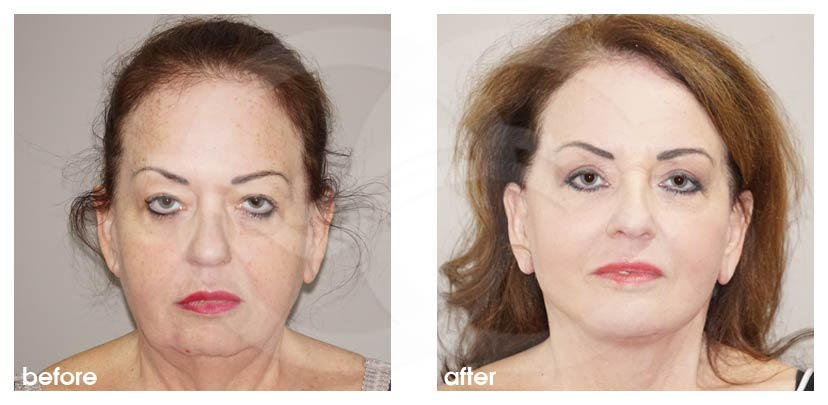 Lifting Facial Antes Después. Lifting Facial implante de mentón Marbella Ocean Clinic