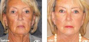 Facelift Surgery Rhytidectomy Before After Photo Ocean Clinic case 02 Marbella