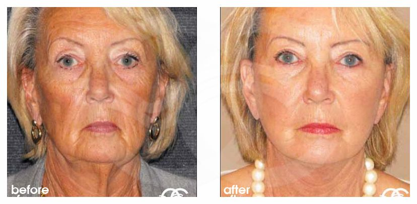 Facelift with Lipografting Before and After Photo frontal Ocean Clinic Marbella Spain