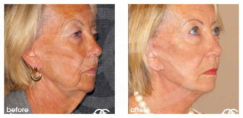 Facelift with Lipografting Before and After Photo side Ocean Clinic Marbella Spain