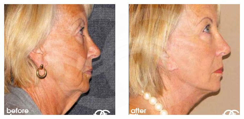 Injerto de grasa facial Lipofilling before after perfil