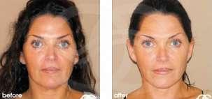 Lifting Facial Ritidectomía Antes y Después Foto Ocean Clinic caso 03 Marbella Málaga