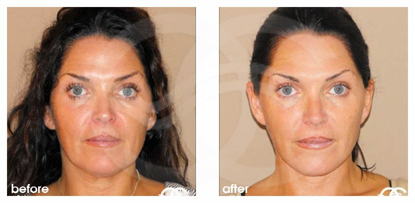 Injerto de grasa facial Mini lifting before after forntal