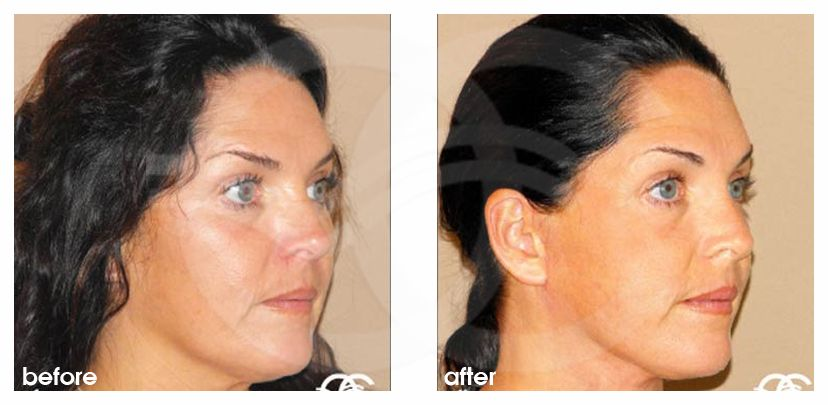 Injerto de grasa facial Mini lifting before after side