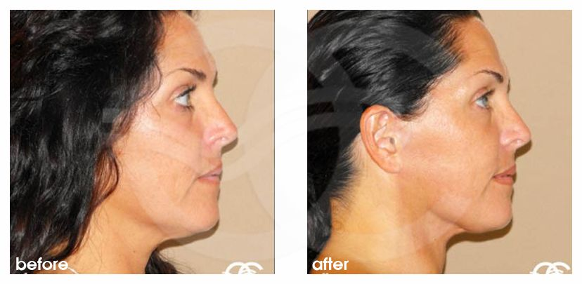 Injerto de grasa facial Mini lifting before after perfil