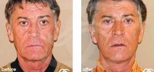 Facelift Surgery Rhytidectomy Before After Photo Ocean Clinic case 04 Marbella