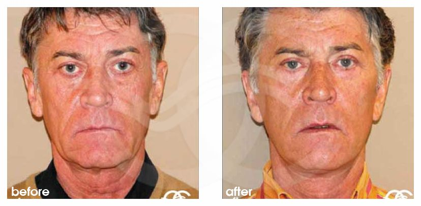 Facelift and Necklift Before and After Photo frontal Ocean Clinic Marbella Spain