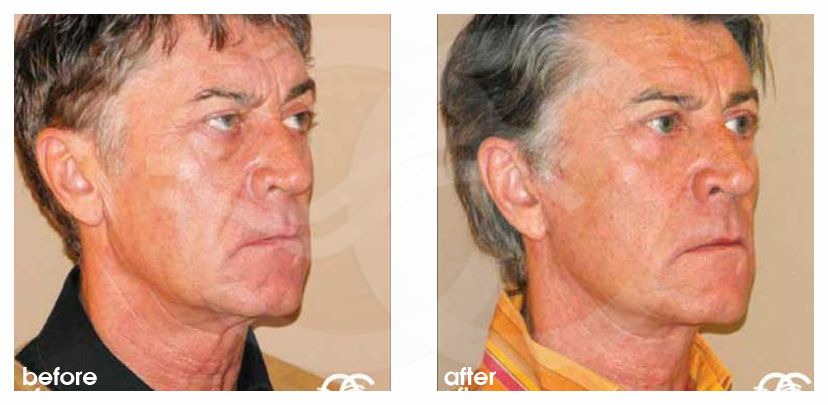 Injerto de grasa facial Transferencia de grasa before after side