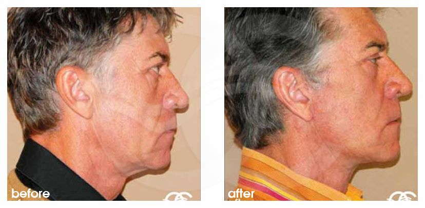 Injerto de grasa facial Transferencia de grasa before after perfil