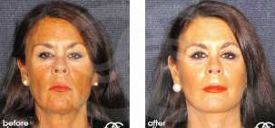 Facelift Surgery Rhytidectomy Before After Photo Ocean Clinic case 05 Marbella