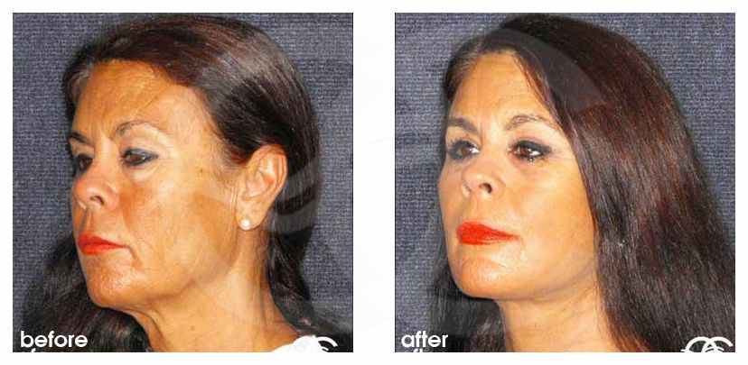 MACS Face and Necklift Before and After Photo side Ocean Clinic Marbella Spain