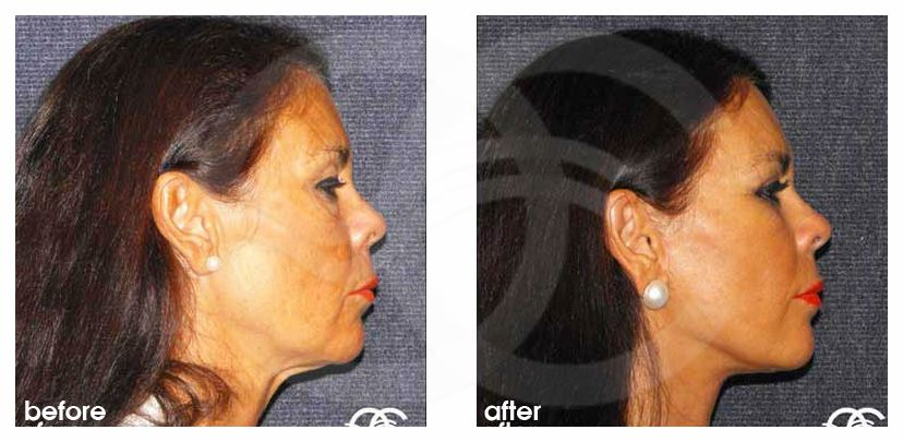 MACS Face and Necklift Before and After Photo profile Ocean Clinic Marbella Spain