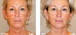 Facelift Surgery Rhytidectomy Before After Photo Ocean Clinic case 06 Marbella