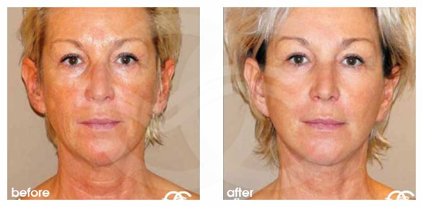 PAVE Facelift and Necklift Before and After Photo frontal Ocean Clinic Marbella Spain