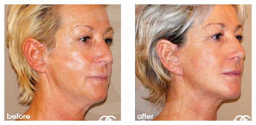 Face and Neck Lift PAVE-lift ante/post-op lateral