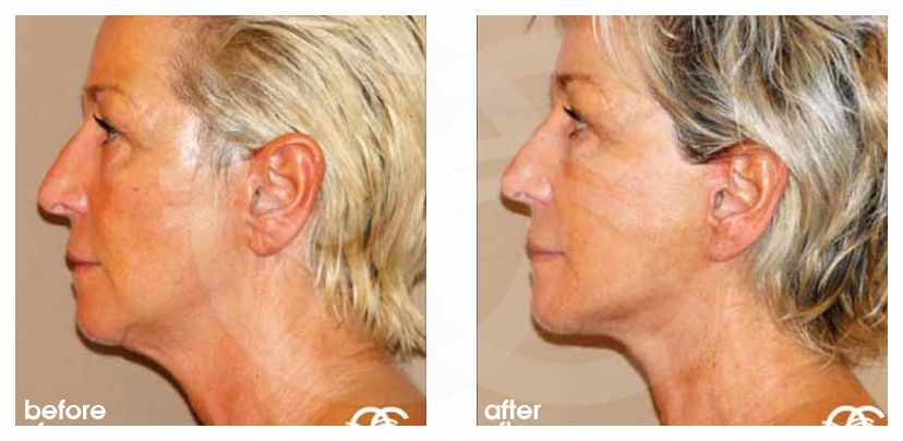PAVE Facelift and Necklift Before and After Photo profile Ocean Clinic Marbella Spain