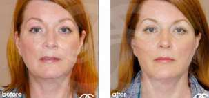 Facelift Surgery Rhytidectomy Before After Photo Ocean Clinic case 07 Marbella