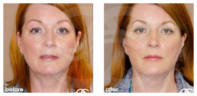 Face and Neck Lift MACS with fat grafting before after forntal
