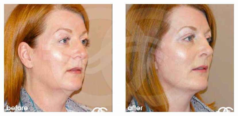 Face and Neck Lift MACS with fat grafting before after side
