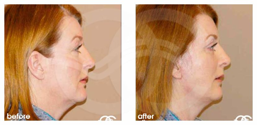 Face and Neck Lift MACS with fat grafting before after perfil
