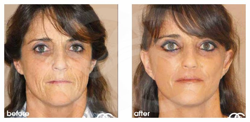 PAVE Necklift with Peeling Before and After Photo frontal Ocean Clinic Marbella Spain