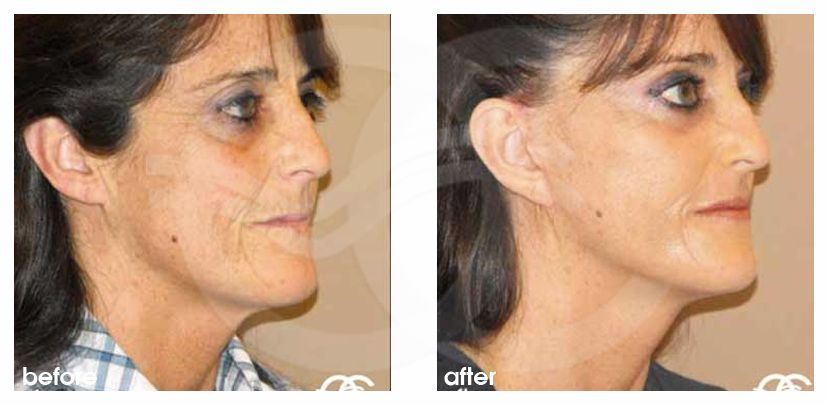 PAVE Necklift with Peeling Before and After Photo side Ocean Clinic Marbella Spain