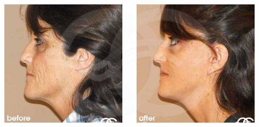 PAVE Necklift with Peeling Before and After Photo profile Ocean Clinic Marbella Spain