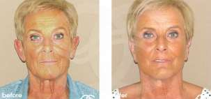 Facelift Surgery Rhytidectomy Before After Photo Ocean Clinic case 09 Marbella Spain