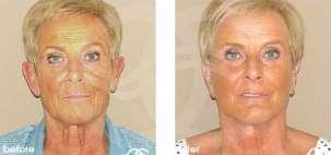Lifting Facial Ritidectomía Antes y Después Foto Ocean Clinic caso 09 Marbella Málaga
