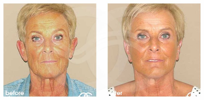 Facelift Before After PAVE-Facelift Concept with Phenol Peeling Photo frontal Ocean Clinic Marbella Spain
