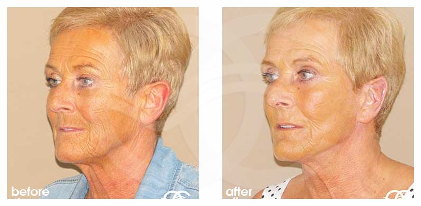 Face and Neck Lift PAVE neck and face before after side