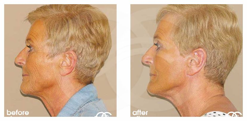 Face and Neck Lift PAVE neck and face before after perfil