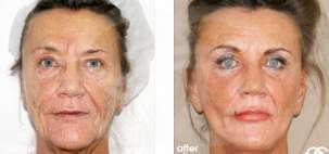 Facelift Surgery Rhytidectomy Before After Photo Ocean Clinic case 10 Marbella